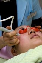 Q-SWITCH : 皮膚細胞にダメージを与えることなく、しみやそばかすを除去できます。